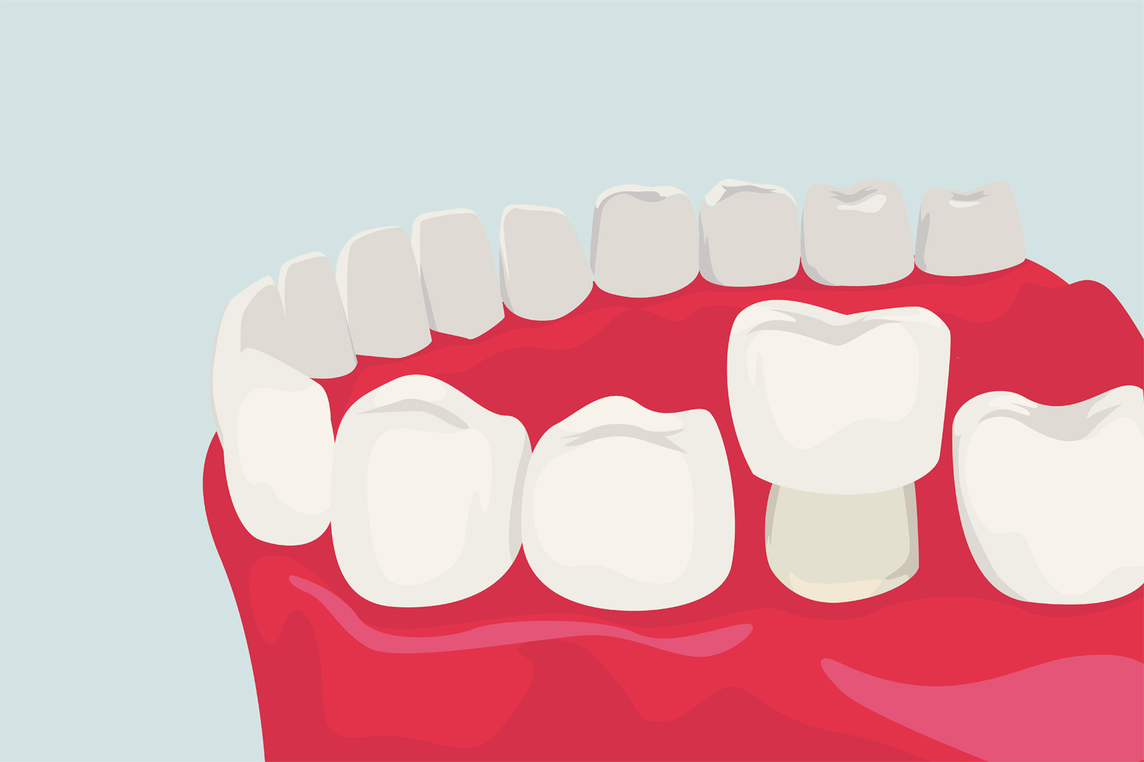 Crowns - Widney Dental - Widney Dental